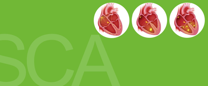 Sudden Cardiac Arrest Is Not the Same as a Heart Attack